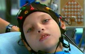 Методы лечения слабоумия у детей
