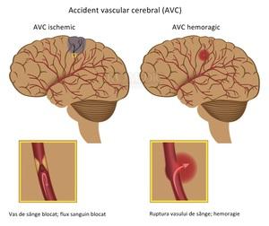Ричиной развития афазии может быть ишемический или геморрагический инсульт