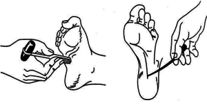 Что такое рефлекс Бабинского и как он проявляется
