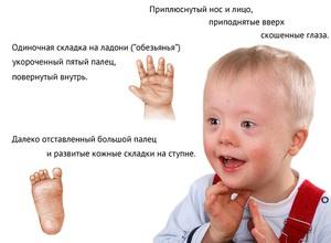 Олигофрения у детей - первые признаки