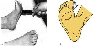 Вызывание рефлекса Бабинского - разные методы