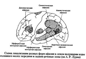 Разновидности афазии