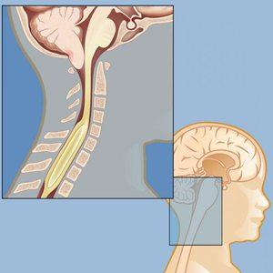 Как диагностируется синдром арнольда-киари