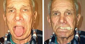 Бульбарный синдром - фото больного