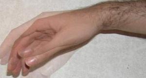 Тремор пальцев - причины и лечение