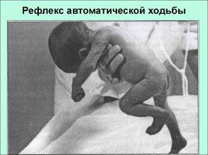 Рефлекс у новорожденного