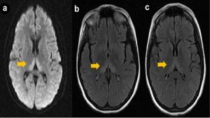 МРТ энцефалопатии - поражение головного мозга