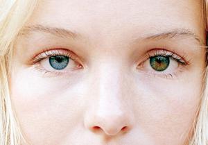 Гетерохромия - один из симптомов